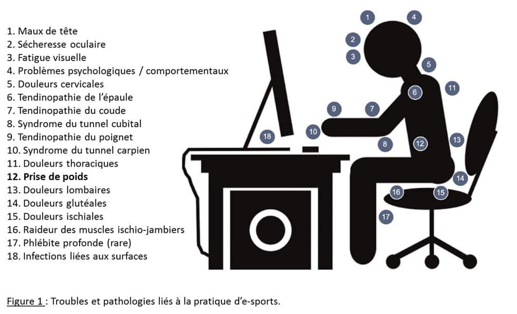 E-sports : les recommandations en termes de nutrition et d'activité physique